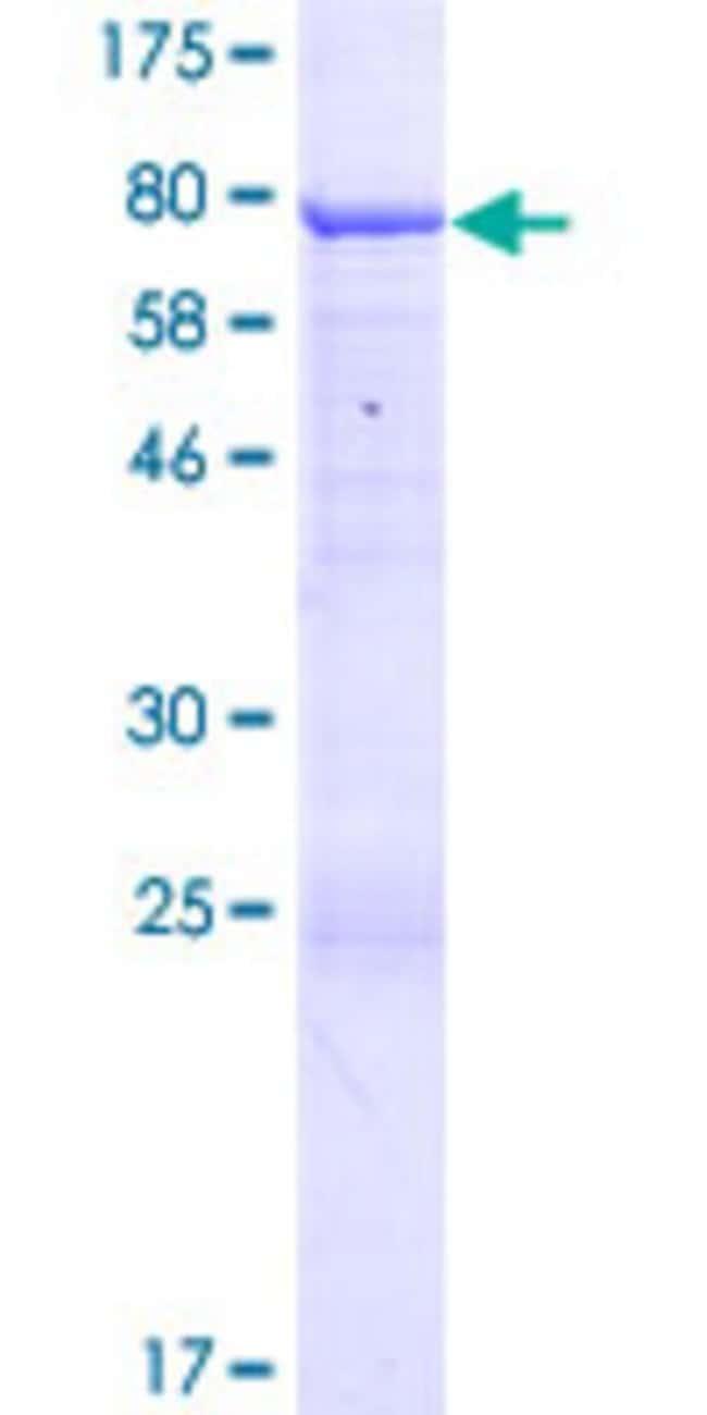 AbnovaHuman ANKMY2 Full-length ORF (NP_064715.1, 1 a.a. - 441 a.a.) Recombinant