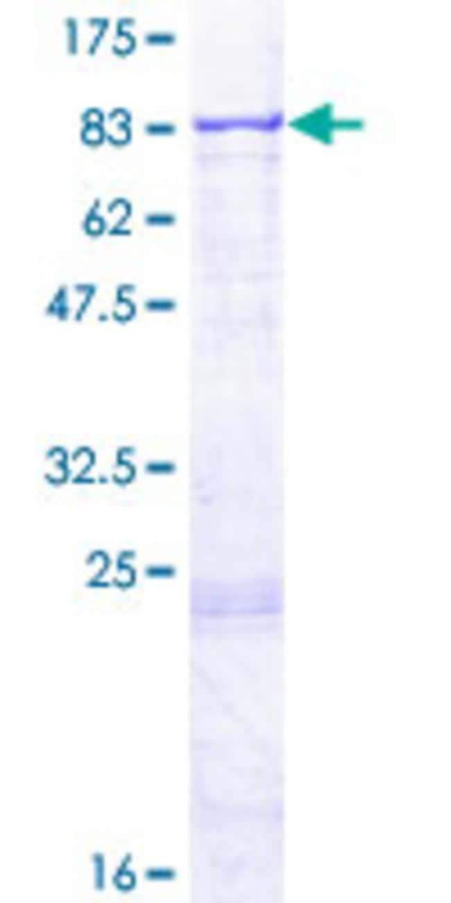 AbnovaHuman RARS2 Full-length ORF (NP_064716.1, 1 a.a. - 578 a.a.) Recombinant