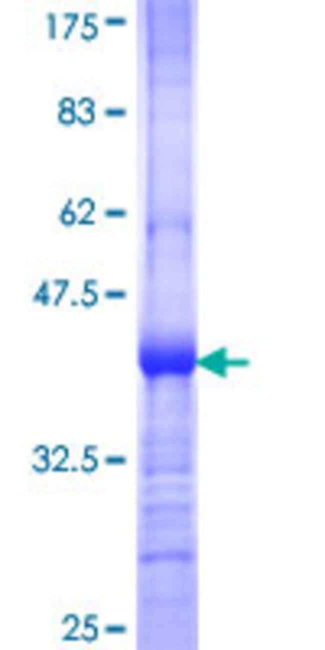 Abnova™Human TWSG1 Partial ORF (NP_065699, 124 a.a. - 223 a.a.) Recombinant Protein with GST-tag at N-terminal 10μg Abnova™Human TWSG1 Partial ORF (NP_065699, 124 a.a. - 223 a.a.) Recombinant Protein with GST-tag at N-terminal