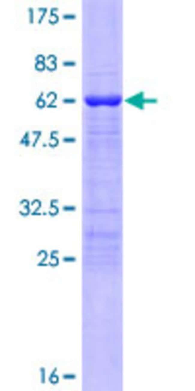 AbnovaHuman TBX20 Full-length ORF (NP_065150.1, 1 a.a. - 297 a.a.) Recombinant