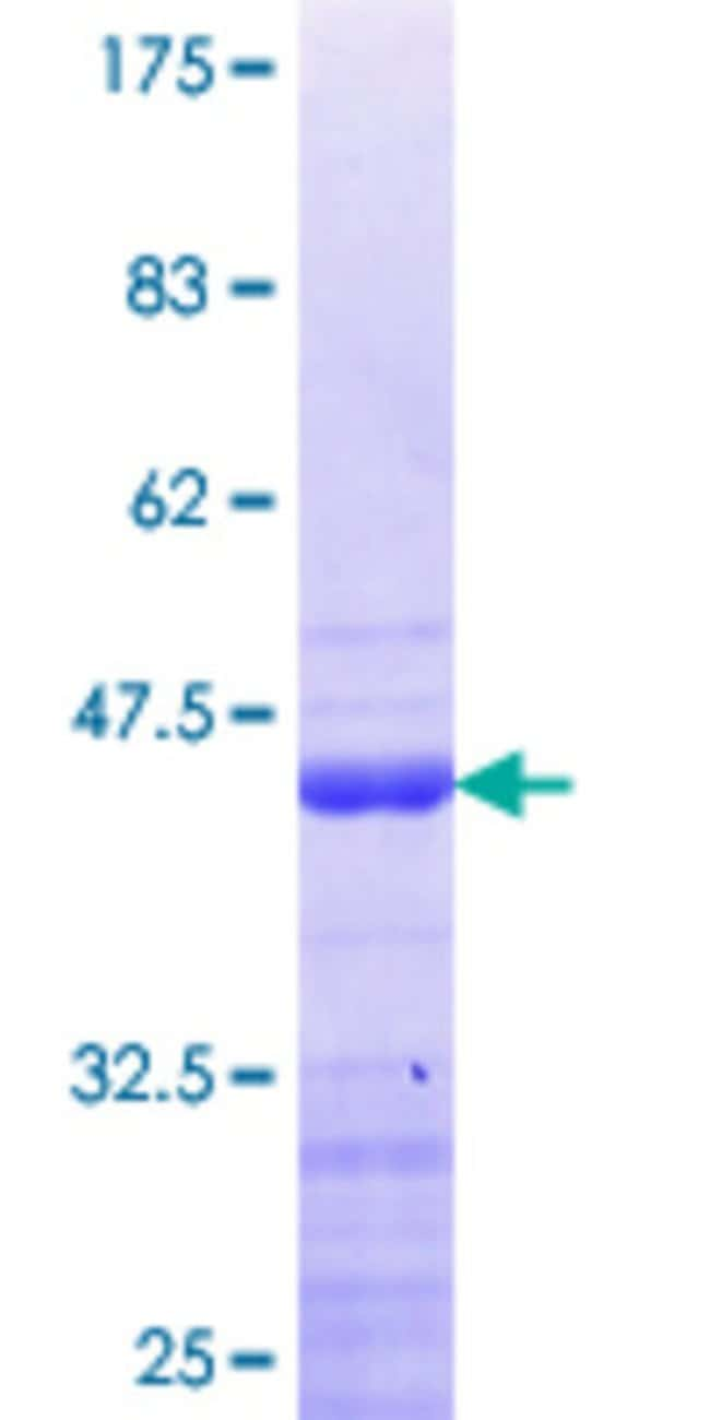 Abnova™Human DDX24 Partial ORF (NP_065147.1, 762 a.a. - 859 a.a.) Recombinant Protein with GST-tag at N-terminal 25μg Abnova™Human DDX24 Partial ORF (NP_065147.1, 762 a.a. - 859 a.a.) Recombinant Protein with GST-tag at N-terminal
