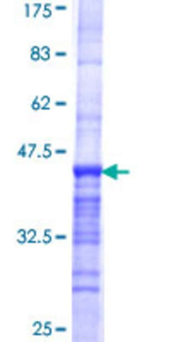 Abnova™Human CASC5 Partial ORF (NP_733468, 3 a.a. - 98 a.a.) Recombinant Protein with GST-tag at N-terminal 25μg Abnova™Human CASC5 Partial ORF (NP_733468, 3 a.a. - 98 a.a.) Recombinant Protein with GST-tag at N-terminal
