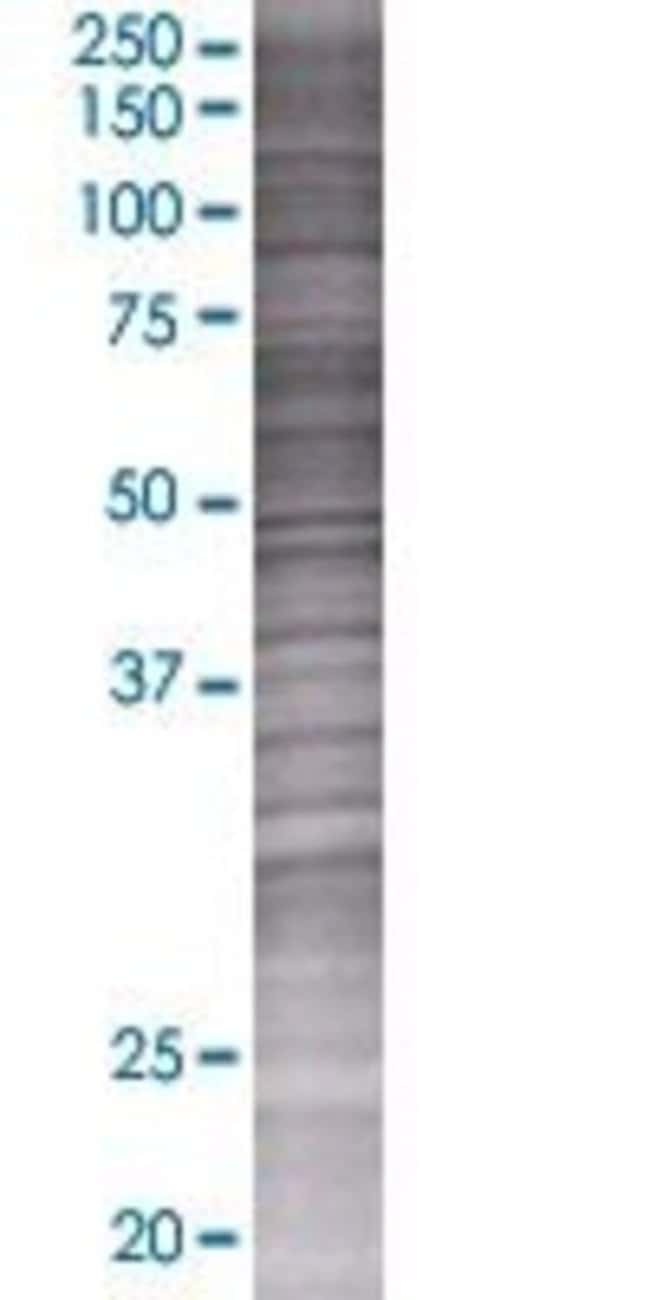 AbnovaAGTRAP 293T Cell Transient Overexpression Lysate (Denatured) (T01)