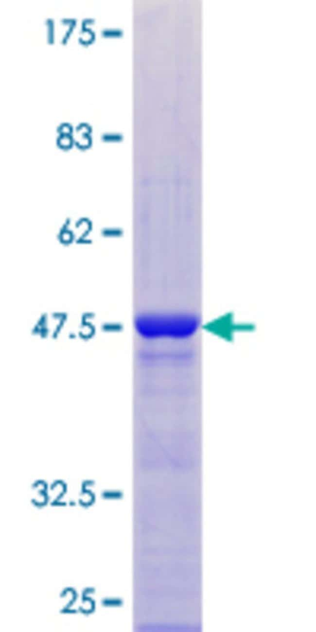 Abnova™ Human PCNP Full-length ORF (NP_065090.1, 1 a.a. - 178 a.a.) Recombinant Protein with GST-tag at N-terminal 10μg Abnova™ Human PCNP Full-length ORF (NP_065090.1, 1 a.a. - 178 a.a.) Recombinant Protein with GST-tag at N-terminal