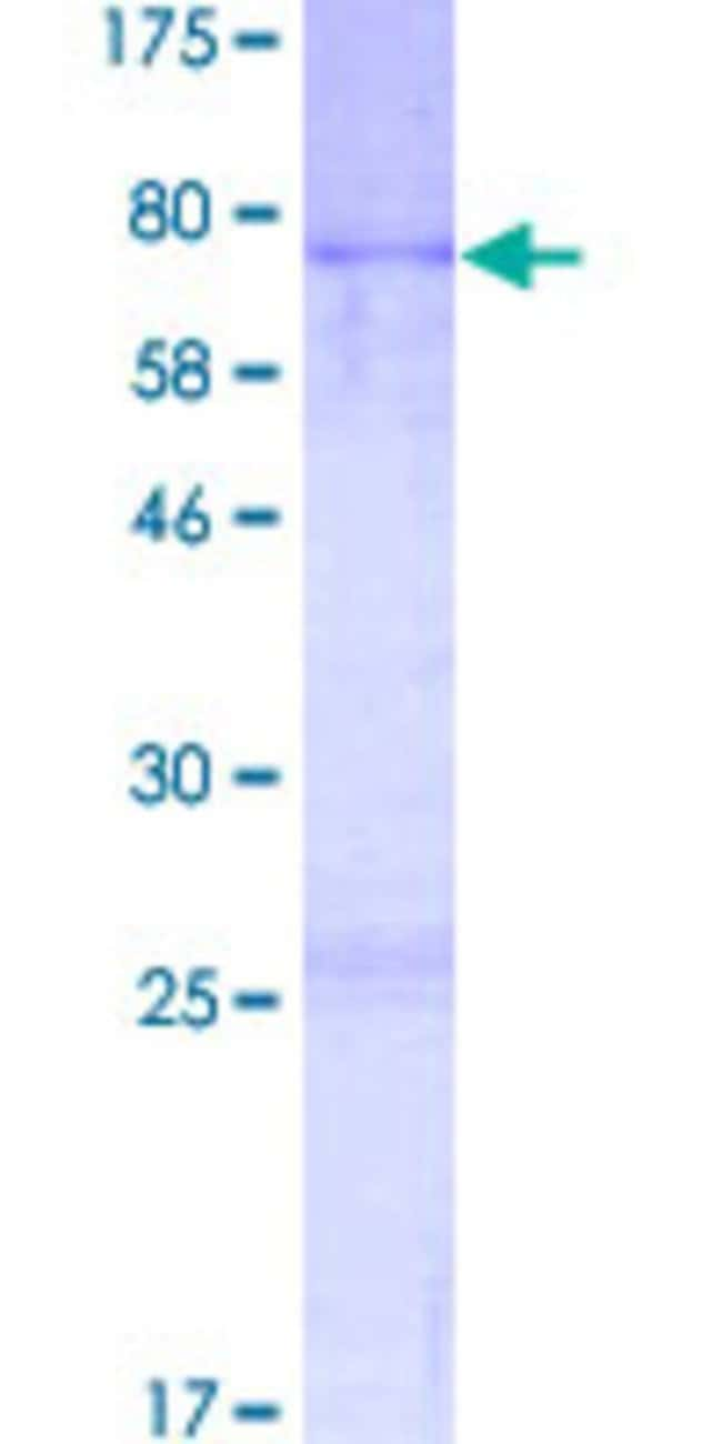 AbnovaHuman AVEN Full-length ORF (NP_065104.1, 1 a.a. - 362 a.a.) Recombinant
