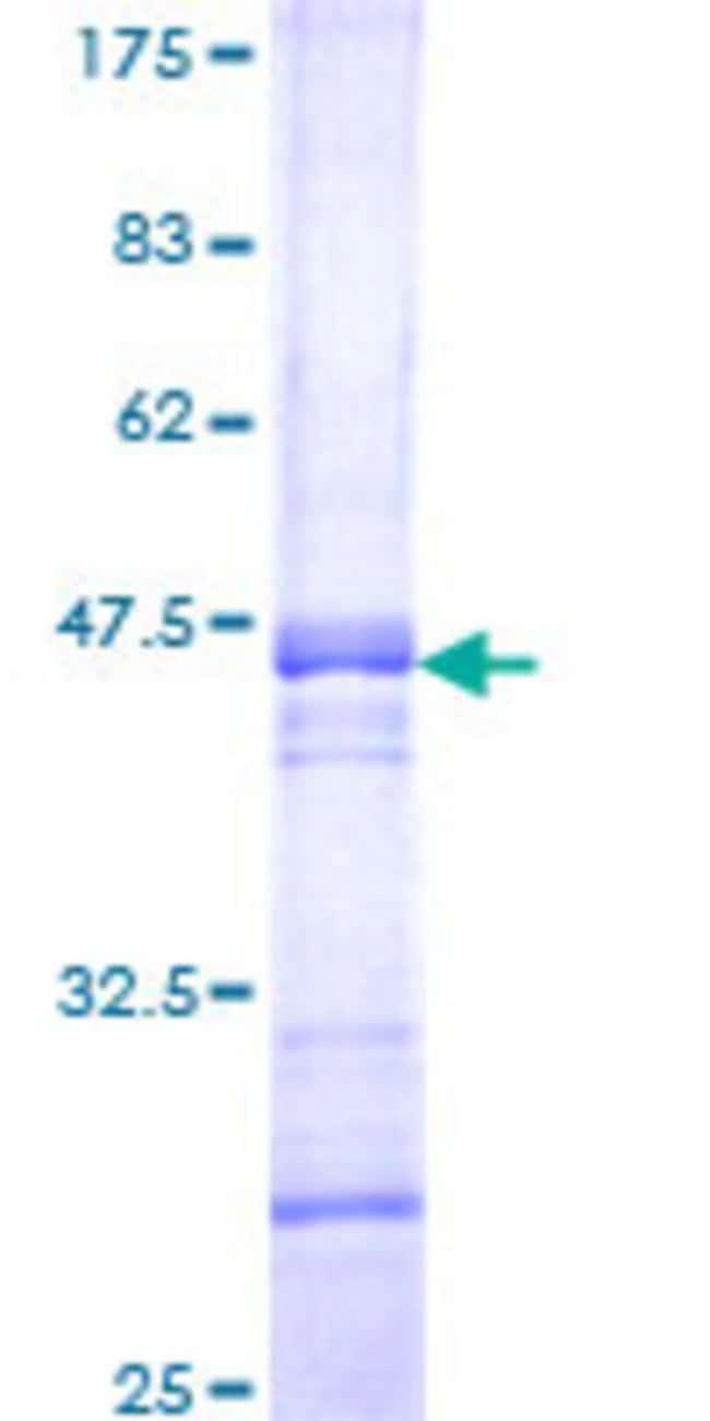 AbnovaHuman AVEN Partial ORF (NP_065104, 253 a.a. - 362 a.a.) Recombinant