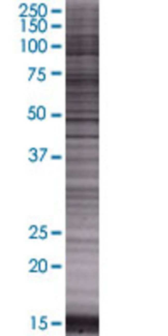 Abnova HRASLS 293T Cell Transient Overexpression Lysate (Denatured) 100µL:Life