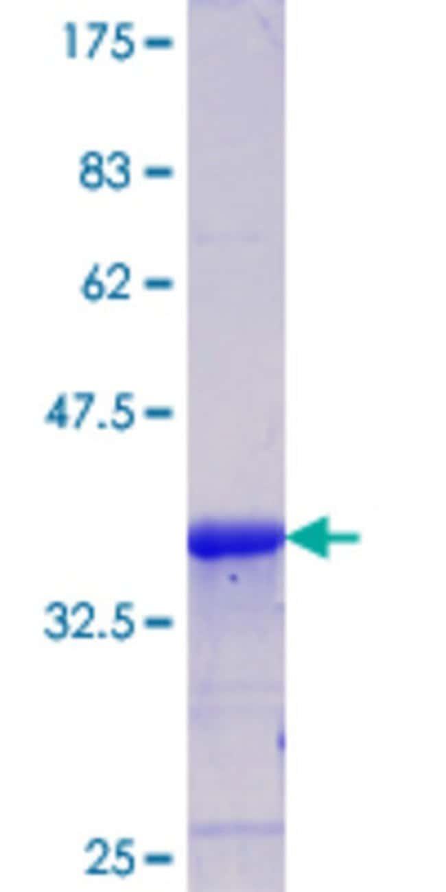 AbnovaHuman CAMK1D Partial ORF (NP_705718.1, 1 a.a. - 95 a.a.) Recombinant