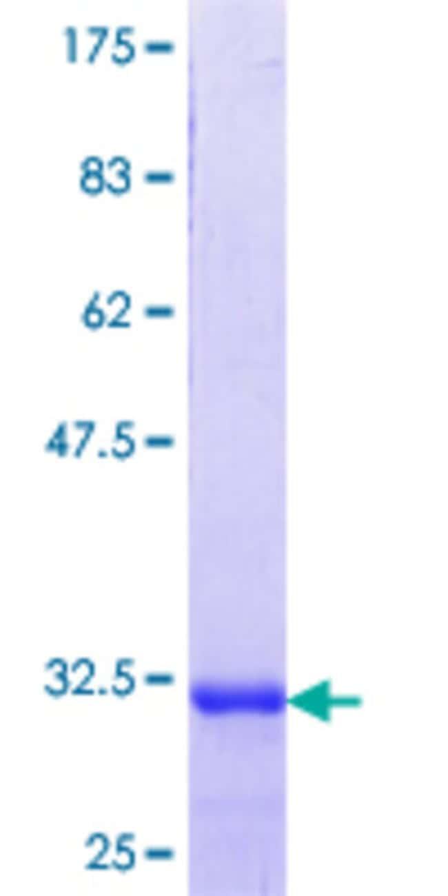 AbnovaHuman GPR92 Partial ORF (NP_065133.1, 301 a.a. - 370 a.a.) Recombinant