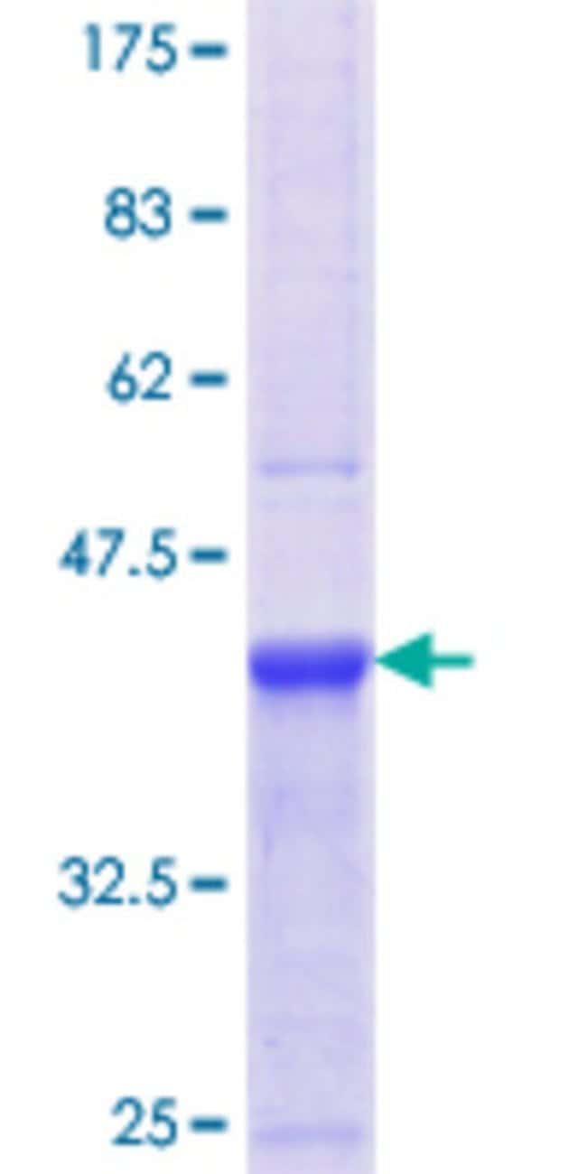 AbnovaHuman CD248 Partial ORF (NP_065137.1, 143 a.a. - 242 a.a.) Recombinant