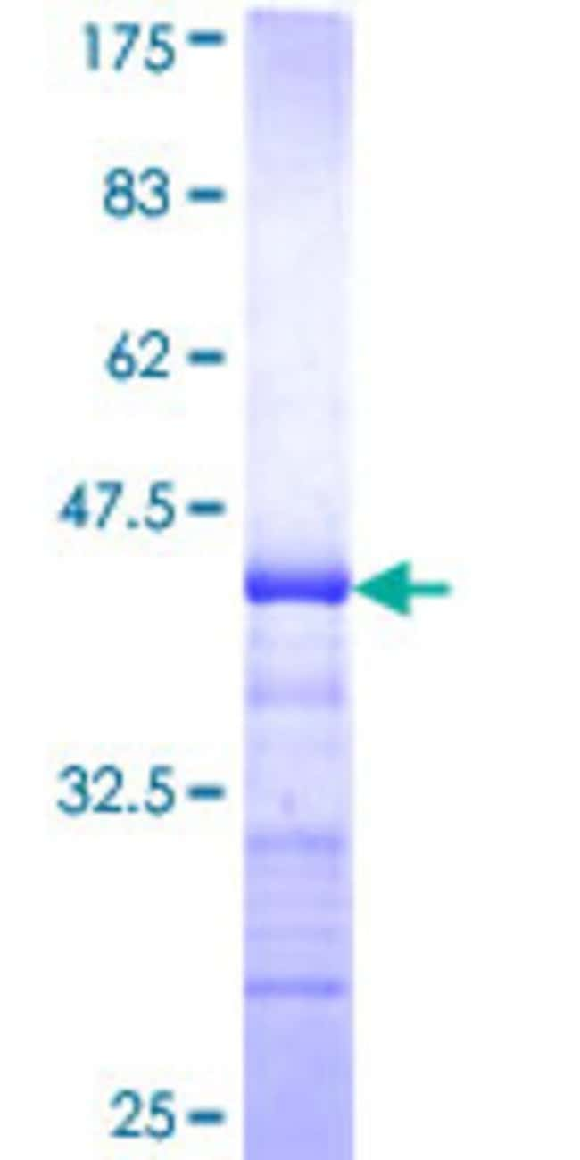 Abnova™Human PLXDC1 Partial ORF (NP_065138, 313 a.a. - 421 a.a.) Recombinant Protein with GST-tag at N-terminal 25μg Abnova™Human PLXDC1 Partial ORF (NP_065138, 313 a.a. - 421 a.a.) Recombinant Protein with GST-tag at N-terminal