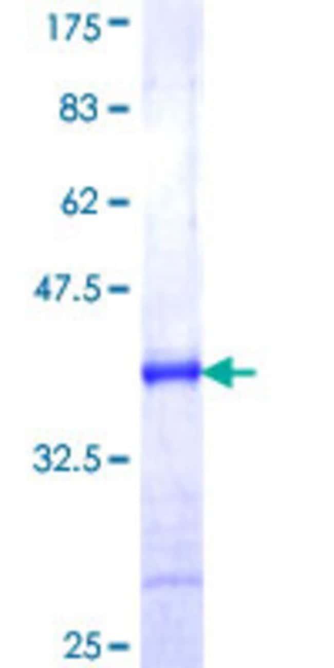 AbnovaHuman CHMP1B Partial ORF (NP_065145, 145 a.a. - 199 a.a.) Recombinant