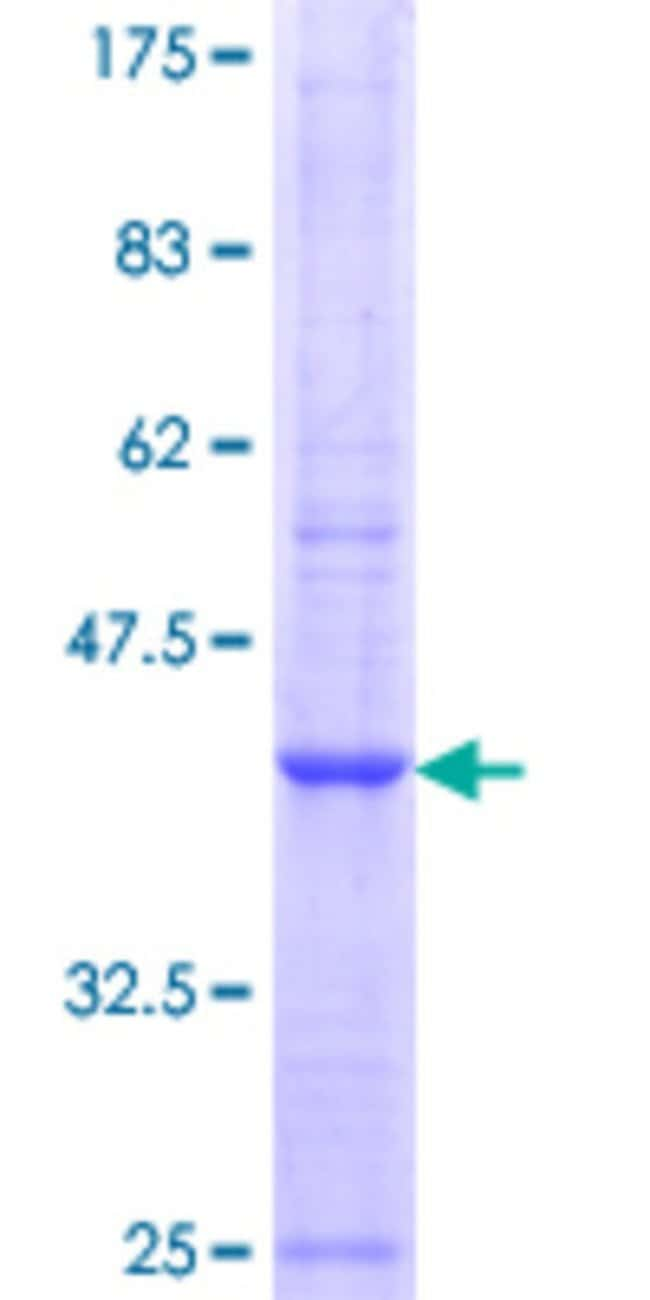 Abnova™Human MAN1C1 Partial ORF (NP_065112.1, 463 a.a. - 565 a.a.) Recombinant Protein with GST-tag at N-terminal 10μg Abnova™Human MAN1C1 Partial ORF (NP_065112.1, 463 a.a. - 565 a.a.) Recombinant Protein with GST-tag at N-terminal
