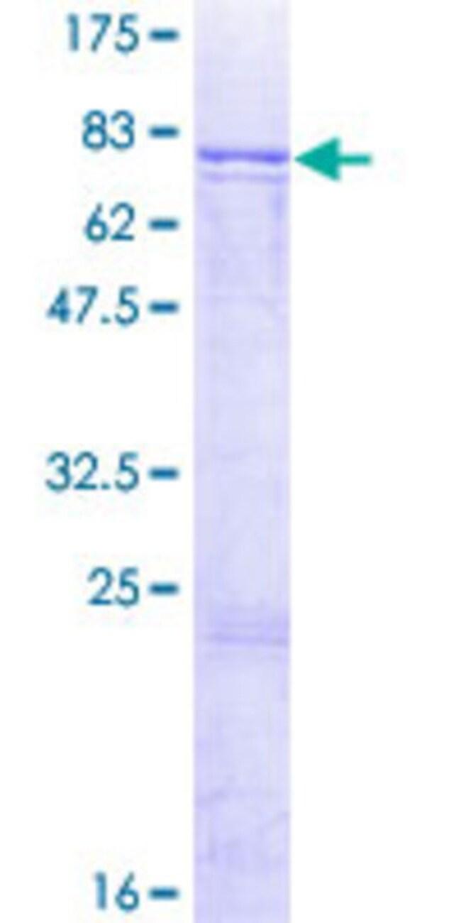AbnovaHuman ADCK1 Full-length ORF (NP_065154.2, 1 a.a. - 523 a.a.) Recombinant