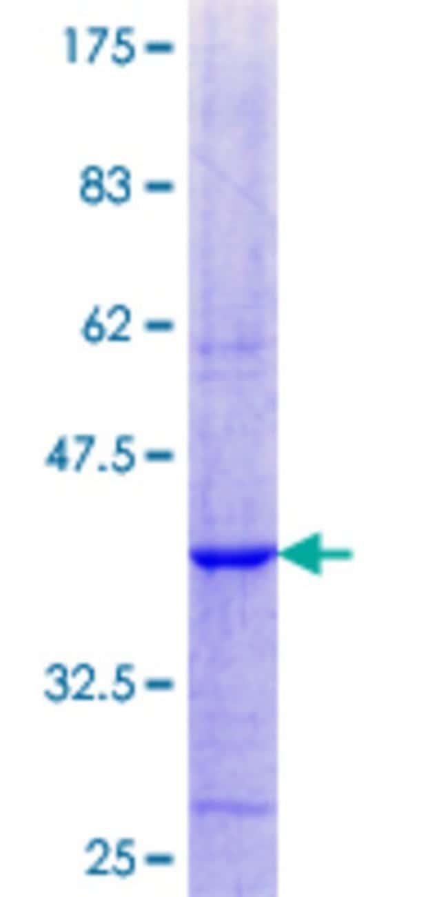 AbnovaHuman ADCK1 Partial ORF (AAH58906.1, 1 a.a. - 100 a.a.) Recombinant