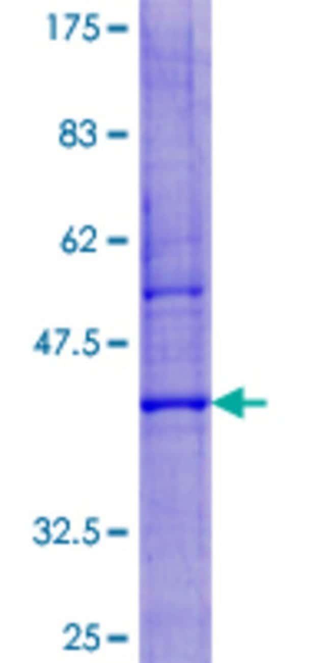 Abnova Human LYZL6 Full-length ORF (NP_065159.1, 1 a.a. - 148 a.a.) Recombinant