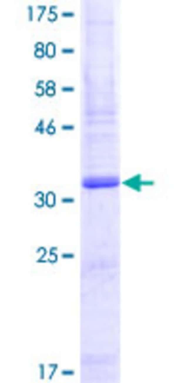 AbnovaHuman SLURP1 Full-length ORF (NP_065160.1, 1 a.a. - 103 a.a.) Recombinant