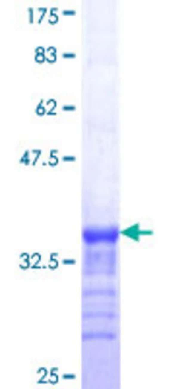 AbnovaHuman TRIM54 Partial ORF (NP_115935, 186 a.a. - 254 a.a.) Recombinant