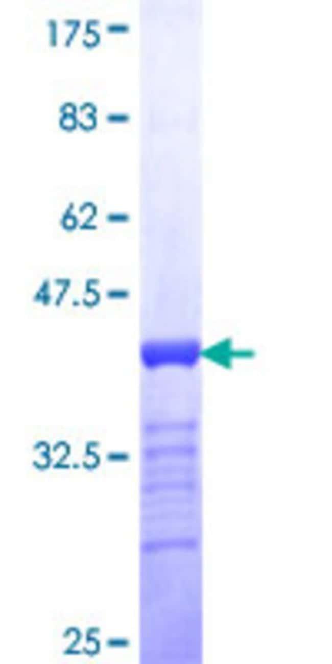 AbnovaHuman SALL4 Partial ORF (NP_065169, 954 a.a. - 1053 a.a.) Recombinant