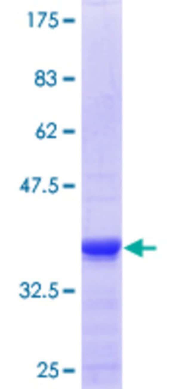 AbnovaHuman ZNFX1 Partial ORF (NP_066363.1, 50 a.a. - 150 a.a.) Recombinant