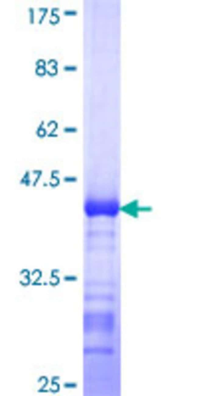 AbnovaHuman SLC39A10 Partial ORF (NP_065075, 514 a.a. - 621 a.a.) Recombinant