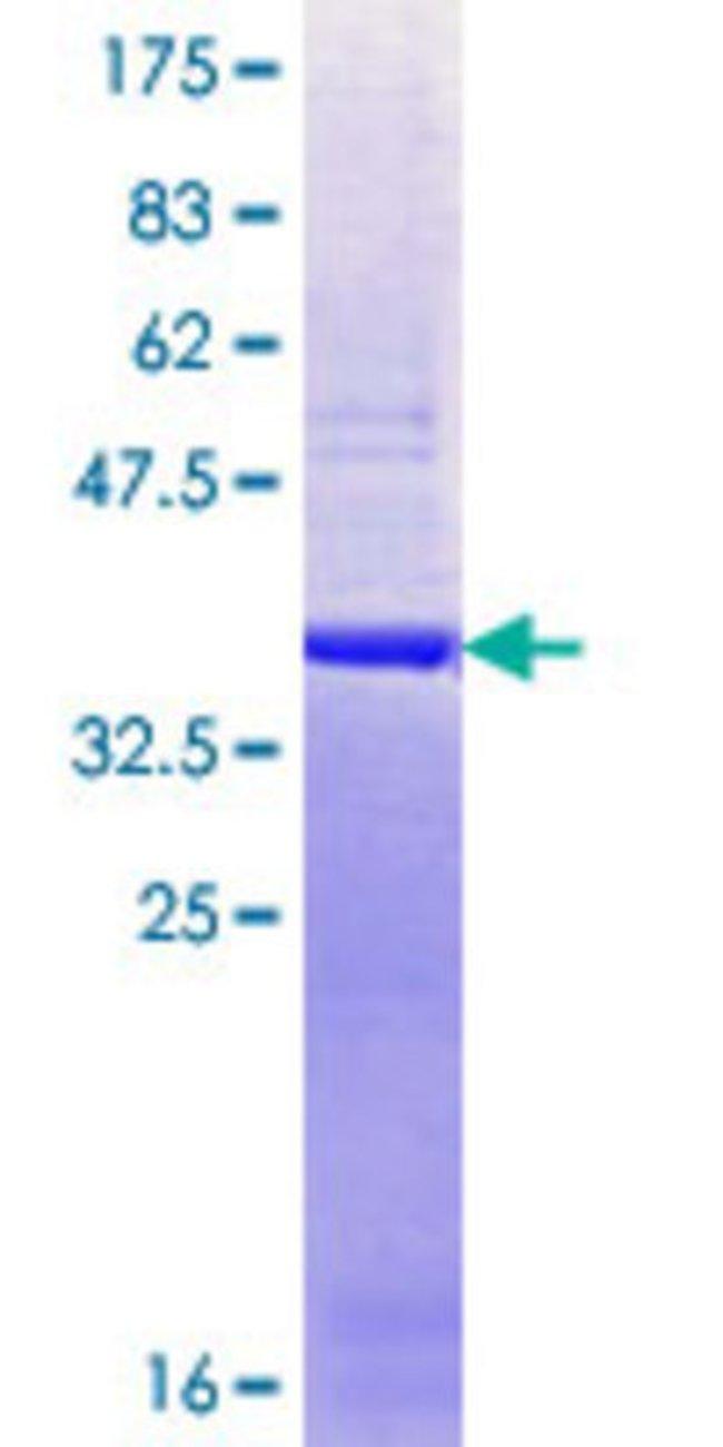 AbnovaHuman THOC2 Partial ORF (NP_065182.1, 1 a.a. - 99 a.a.) Recombinant