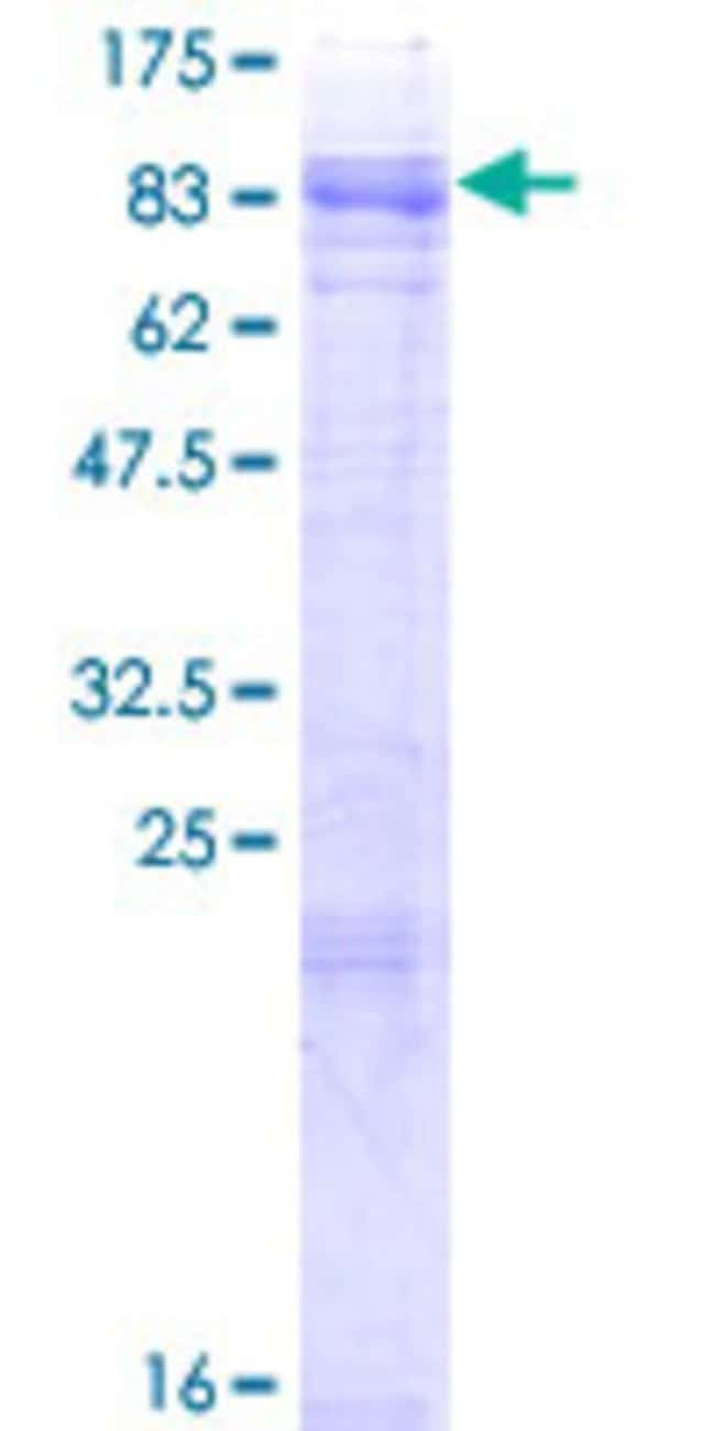 Abnova™ Human MCOLN1 Full-length ORF (NP_065394.1, 1 a.a. - 580 a.a.) Recombinant Protein with GST-tag at N-terminal 25μg Abnova™ Human MCOLN1 Full-length ORF (NP_065394.1, 1 a.a. - 580 a.a.) Recombinant Protein with GST-tag at N-terminal