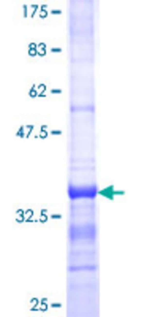 AbnovaHuman ATP8B2 Partial ORF (NP_065185, 729 a.a. - 807 a.a.) Recombinant