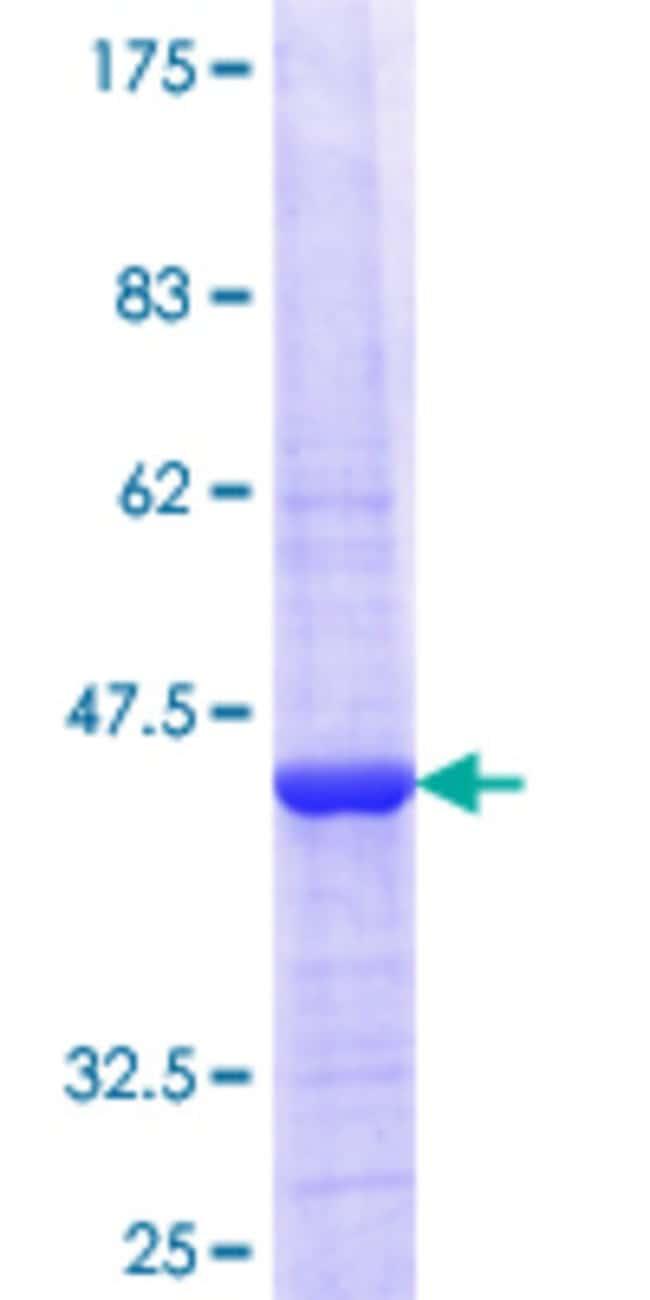 AbnovaHuman THAP11 Partial ORF (NP_065190.2, 1 a.a. - 85 a.a.) Recombinant