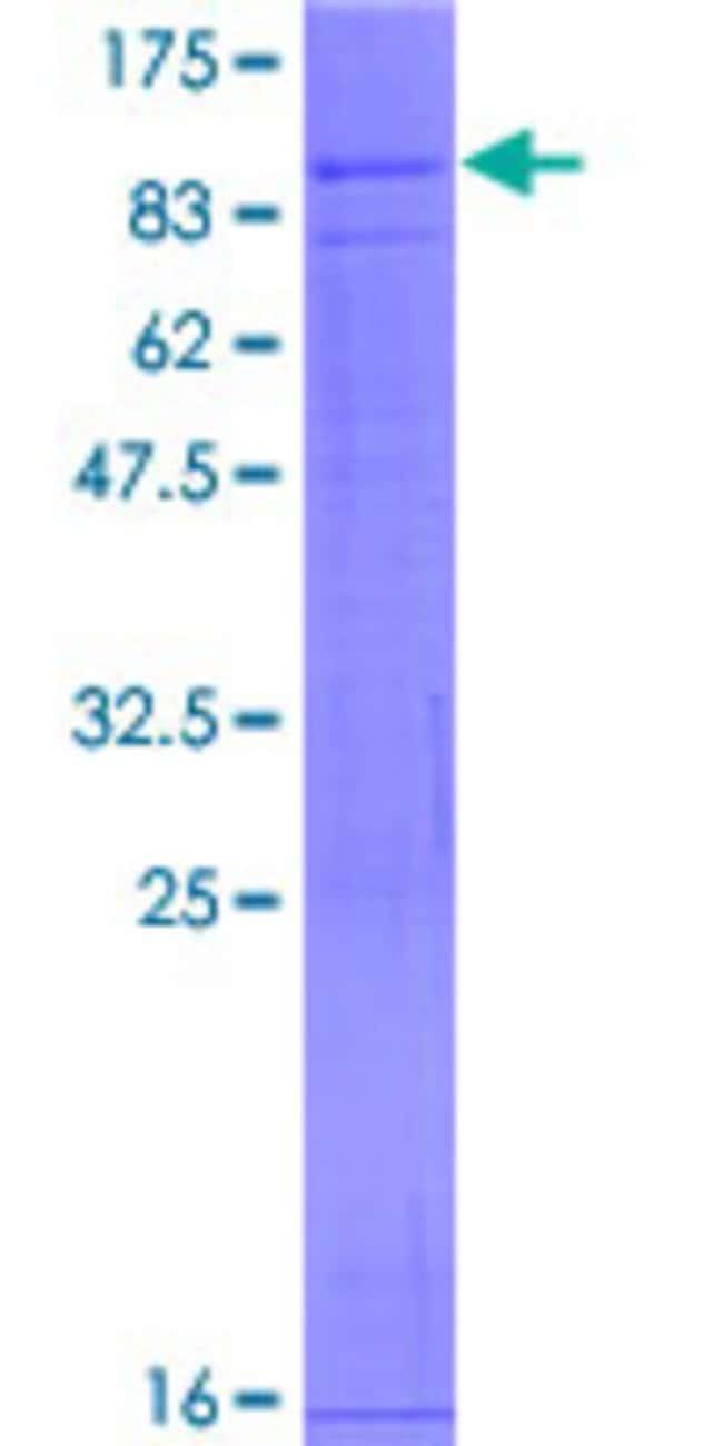 AbnovaHuman VANGL2 Full-length ORF (NP_065068.1, 1 a.a. - 521 a.a.) Recombinant