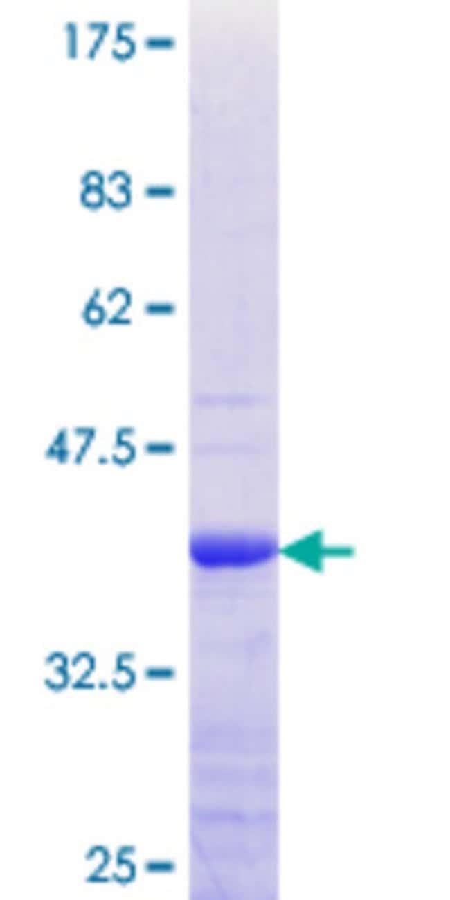 AbnovaHuman PBXIP1 Partial ORF (NP_065385.2, 480 a.a. - 578 a.a.) Recombinant