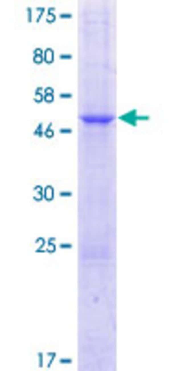 AbnovaHuman TTYH1 Full-length ORF (AAH19358.1, 1 a.a. - 239 a.a.) Recombinant