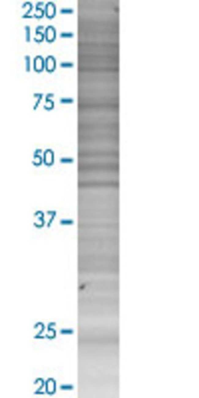 AbnovaAICDA 293T Cell Transient Overexpression Lysate (Denatured) 100μL:Protein