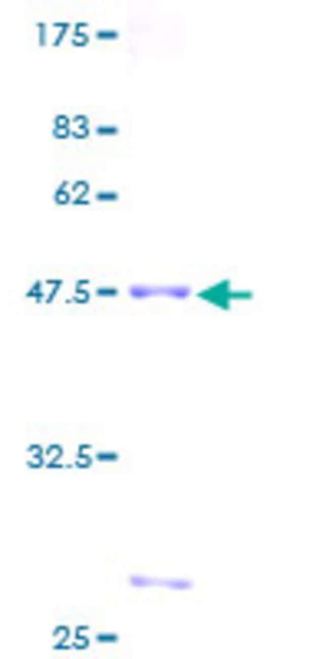 AbnovaHuman RAB22A Full-length ORF (AAH15710, 1 a.a. - 194 a.a.) Recombinant