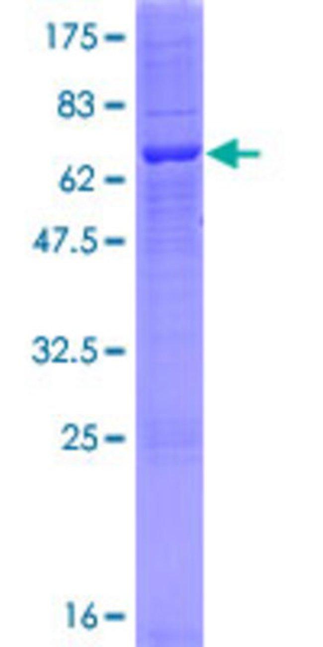 AbnovaHuman ABHD6 Full-length ORF (AAH01698.1, 1 a.a. - 337 a.a.) Recombinant
