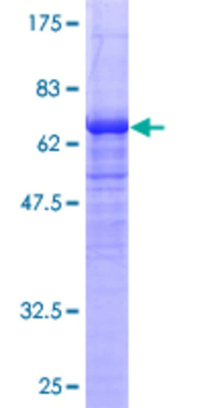 AbnovaHuman NDRG2 Full-length ORF (AAH11240, 1 a.a. - 360 a.a.) Recombinant