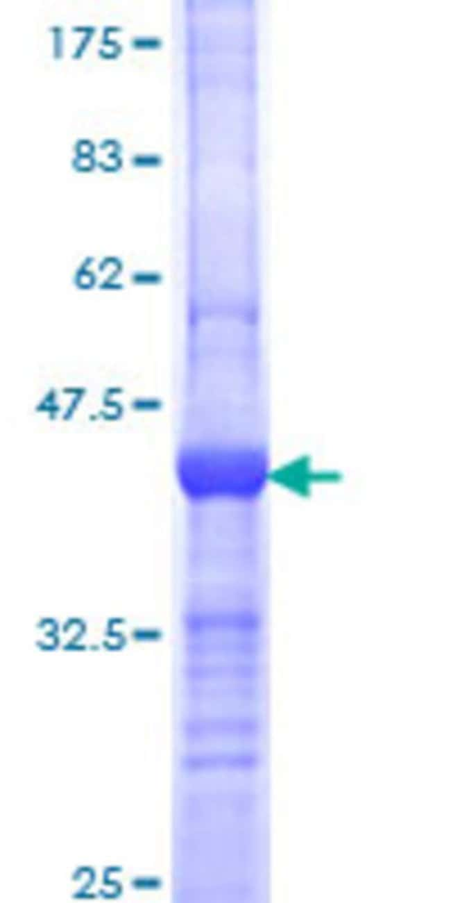 AbnovaHuman BIRC6 Partial ORF (NP_057336, 31 a.a. - 140 a.a.) Recombinant