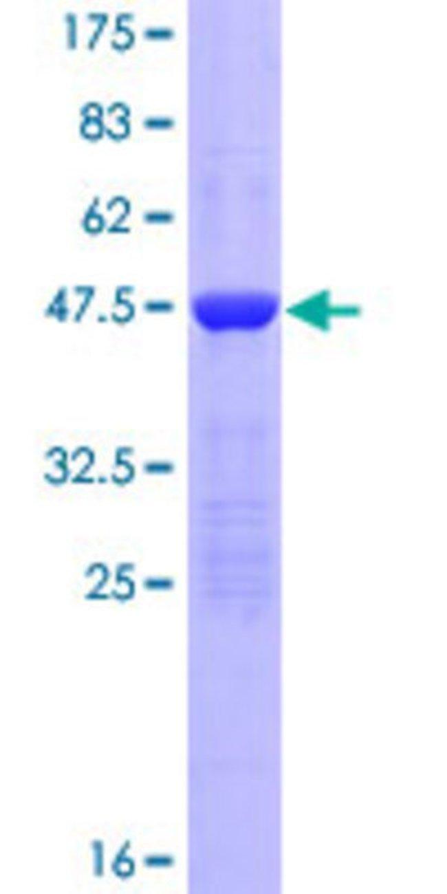 Abnova Human KIAA1143 Full-length ORF (NP_065747.1, 1 a.a. - 154 a.a.)