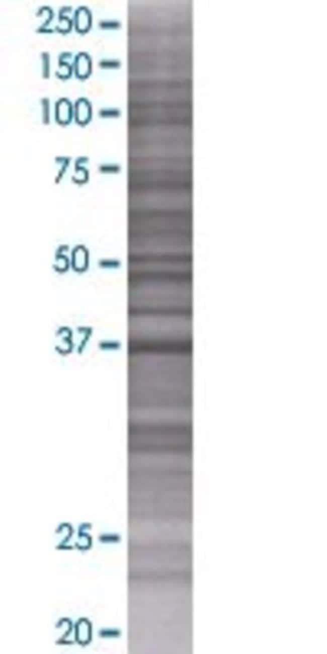 Abnova KIAA1160 293T Cell Transient Overexpression Lysate (Denatured) 100µL:Life