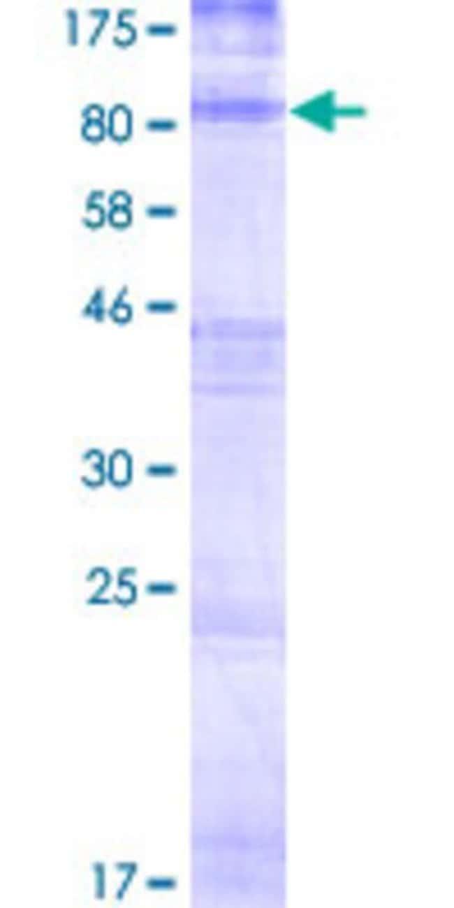 AbnovaHuman HHATL Full-length ORF (NP_065758.2, 1 a.a. - 504 a.a.) Recombinant
