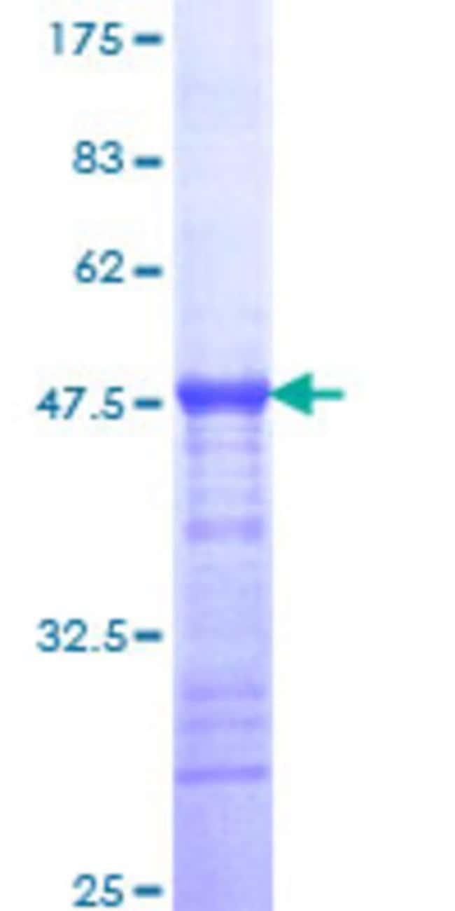 AbnovaHuman KIAA1201 Partial ORF (XP_370660, 250 a.a. - 353 a.a.) Recombinant