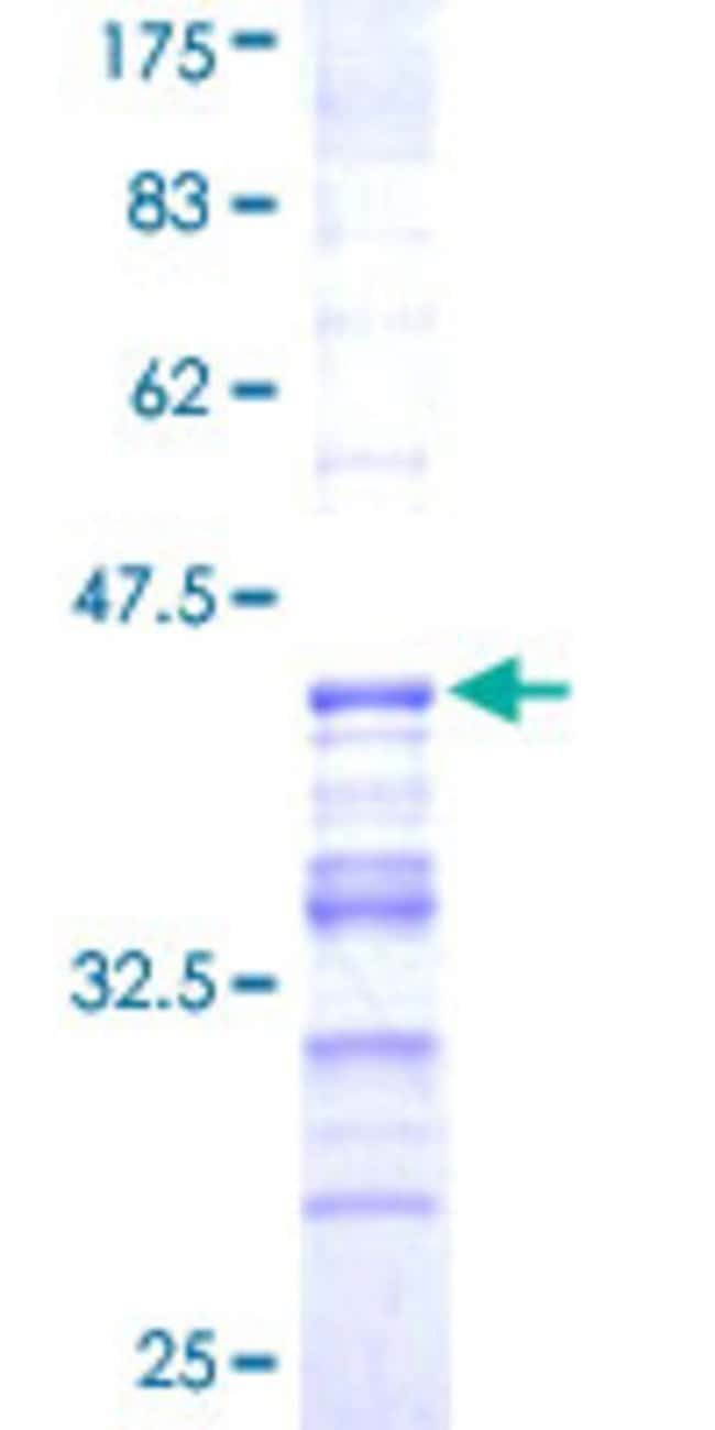 AbnovaHuman USP31 Partial ORF (NP_065769, 1254 a.a. - 1352 a.a.) Recombinant