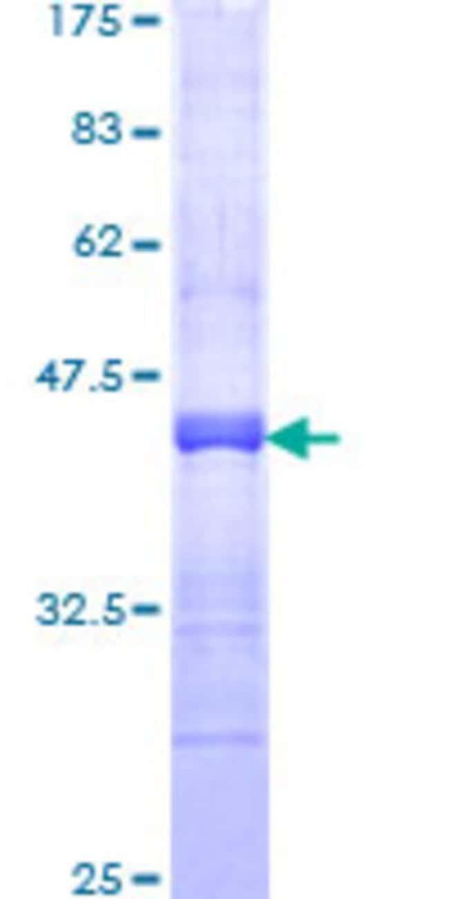 AbnovaHuman RNF150 Partial ORF (NP_065775, 67 a.a. - 176 a.a.) Recombinant