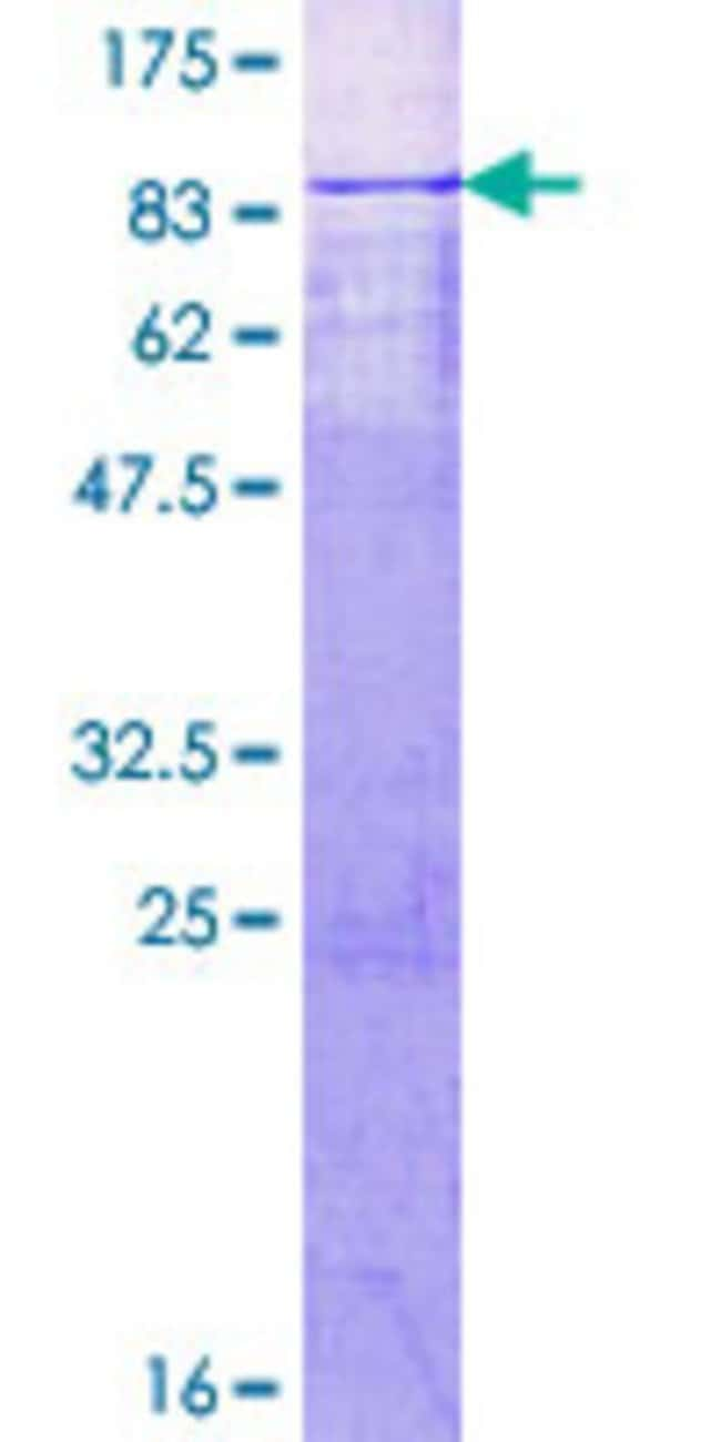 Abnova™Human MTA3 Full-length ORF (NP_065795.1, 1 a.a. - 515 a.a.) Recombinant Protein with GST-tag at N-terminal 10μg Abnova™Human MTA3 Full-length ORF (NP_065795.1, 1 a.a. - 515 a.a.) Recombinant Protein with GST-tag at N-terminal