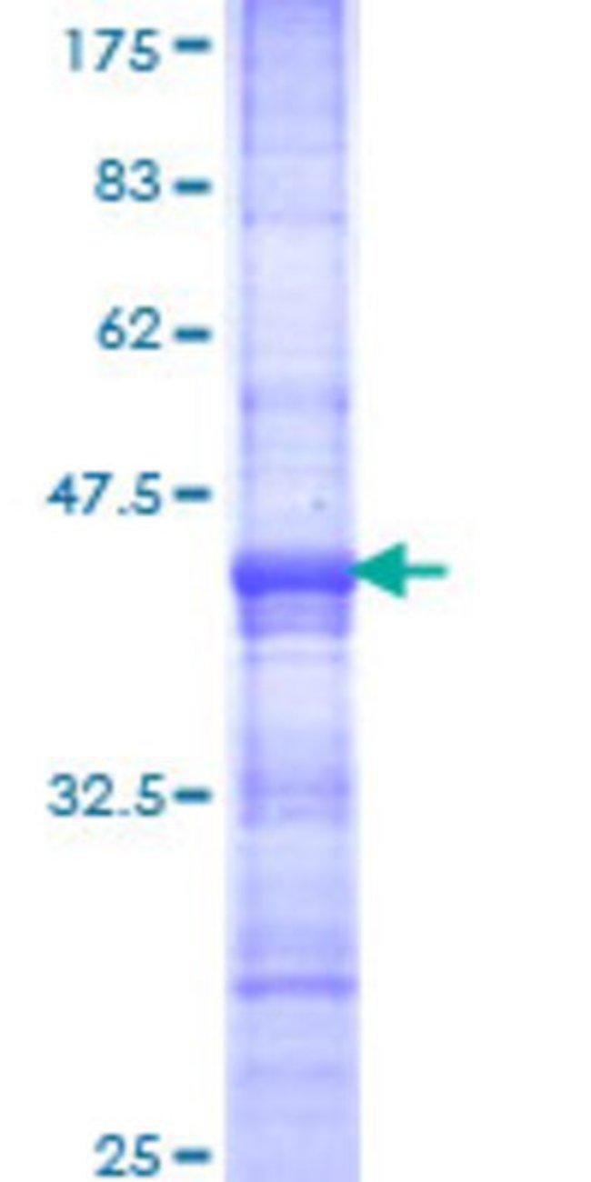 AbnovaHuman MTA3 Partial ORF (NP_065795, 416 a.a. - 515 a.a.) Recombinant