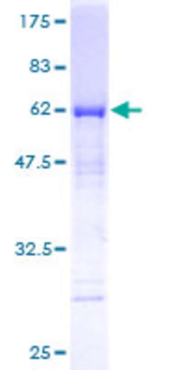 Abnova™Human MTUS1 Full-length ORF (AAH33842, 1 a.a. - 240 a.a.) Recombinant Protein with GST-tag at N-terminal 25μg Abnova™Human MTUS1 Full-length ORF (AAH33842, 1 a.a. - 240 a.a.) Recombinant Protein with GST-tag at N-terminal