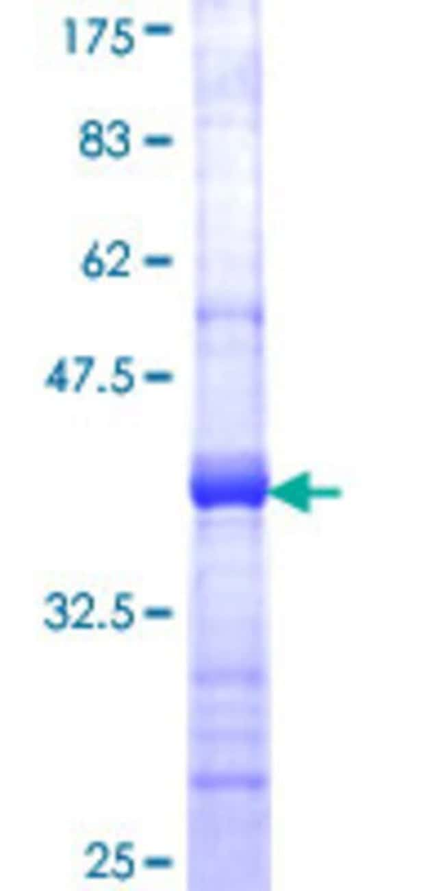 AbnovaHuman COG6 Partial ORF (NP_065802, 558 a.a. - 657 a.a.) Recombinant