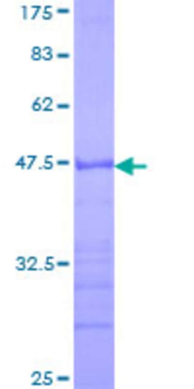 AbnovaHuman HECW2 Partial ORF (NP_065811, 637 a.a. - 745 a.a.) Recombinant