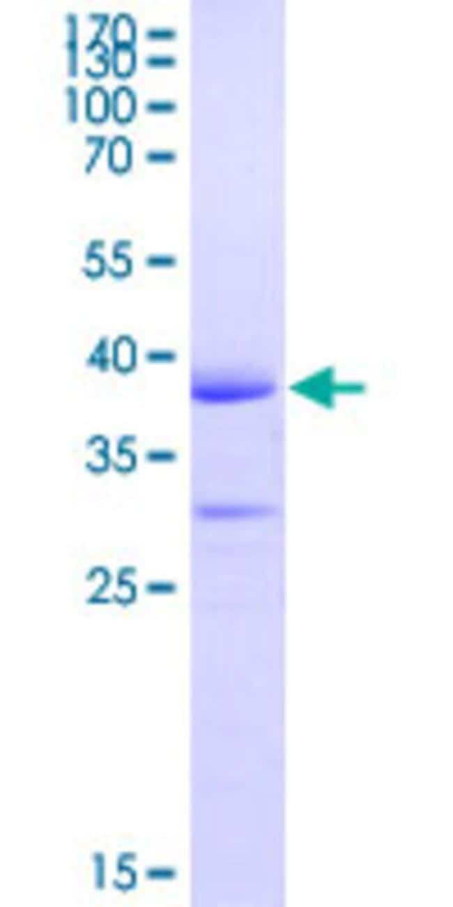 AbnovaHuman PCDH19 Partial ORF (NP_065817.1, 241 a.a. - 340 a.a.) Recombinant