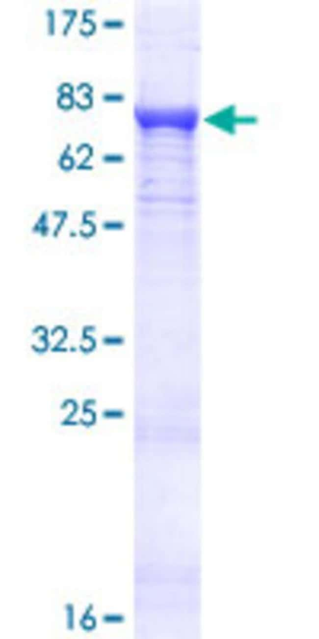 AbnovaHuman PDP2 Full-length ORF (NP_065837.1, 1 a.a. - 529 a.a.) Recombinant